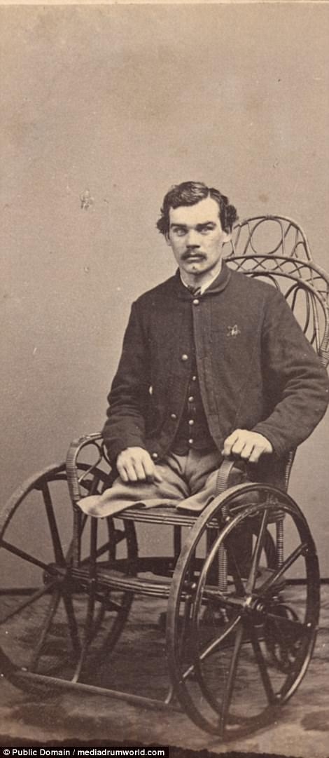 Corporal Michael Dunn of Co. H, 46th Pennsylvania Infantry Regiment, after the amputation of his legs in 1864, the result of injuries received in a battle near Dallas, Georgia, on May 25, 1864. Dunn also fought at Gettysburg, Antietam, and Fredericksburg. After the war, he wrote about his injuries and repeated amputation