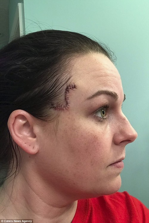 Despite being left with a prominent scar, Ms Jones feels lucky the cancer did not spread