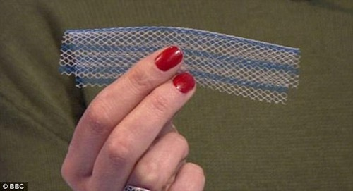 Controversial vaginal mesh implants (pictured) should be banned, according to NICE