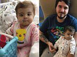 Baby with rare liver disease stuns doctors with recovery