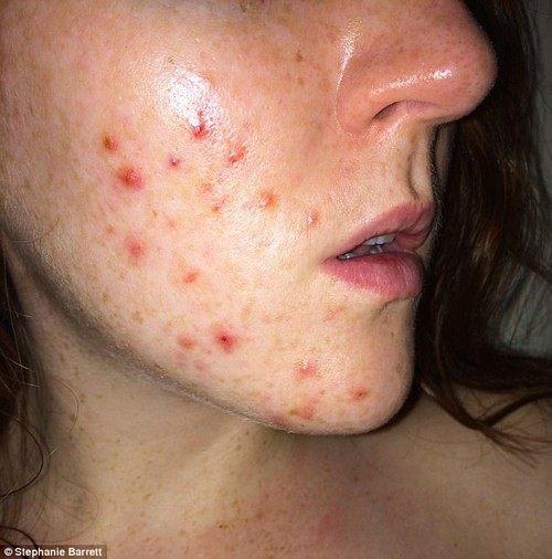 Desperate attempts to rid herself of the unsightly pimples have led to her trying a range of creams, ice cubes and even potato skins