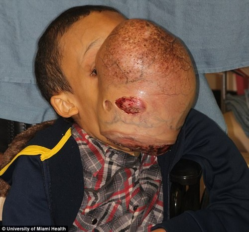 Emanuel Zayas, 14, has a basketball-sized tumor growing on his face due to a rare disorder that causes bone to grow instead of tissue