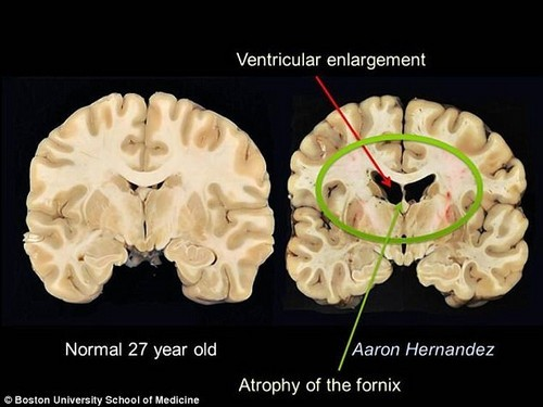 A post-mortem brain scan shows the severe damage to Aaron Hernandez's brain from years of head trauma while playing football. It was the most-severe case of CTE ever reported