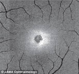 More damage was done to the outer retina of Nia's left eye