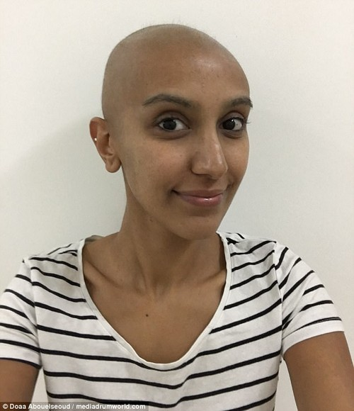Doaa suffered several rounds of gruelling chemotherapy and radiotherapy