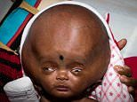 Indian baby's head tripled in size due to hydrocephalus