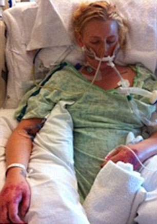 She is pictured in the hospital where she had a 107 degree fever, suffered a massive heart attack