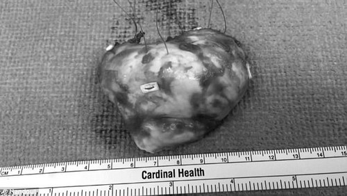 Cohen's tumor was the size of a tennis ball and may be the largest cardiac tumor ever recorded