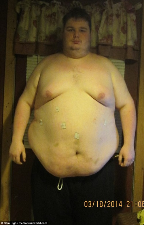 The way he was: Sam has lost more than half his body weight, dropping to 200 lbs (14st 4lbs), and trading his 60in waist for 36in (pictured here before his weight loss in March 2014)