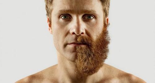 Борода — не признак сексуальности. /Фото: epil.guru